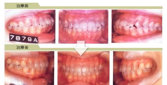 上下顎前突【口元が出ている感じが気になる人など】|杉戸サン歯科医院