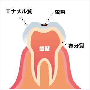 小さい虫歯