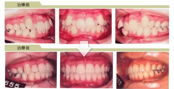 八重歯・乱ぐい歯(叢生-そうせい-)|杉戸サン歯科医院