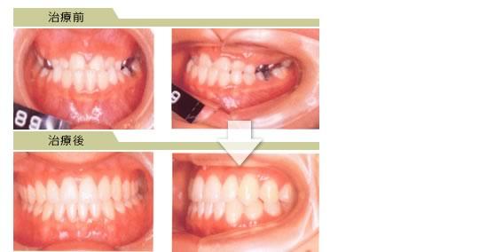 反対咬合|杉戸サン歯科医院