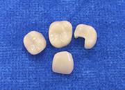 CAD・CAMセラミックインレー・クラウン(ノンメタル)|杉戸サン歯科医院