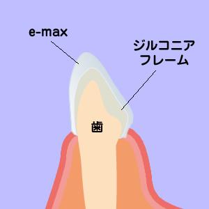 e.maxクラウン+ジルコニアフレーム